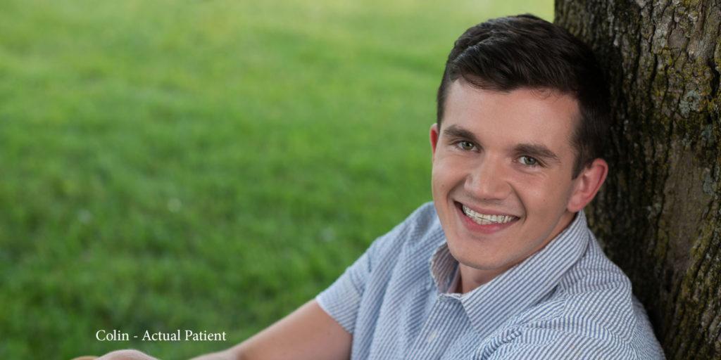 Colin - Actual Patient